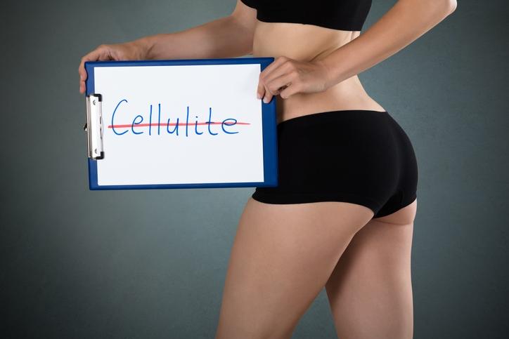 Cellulite ist für Frauen und Männer ein leidiges Thema