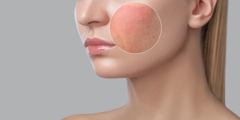 Hautveränderungen_Farbe der Haut